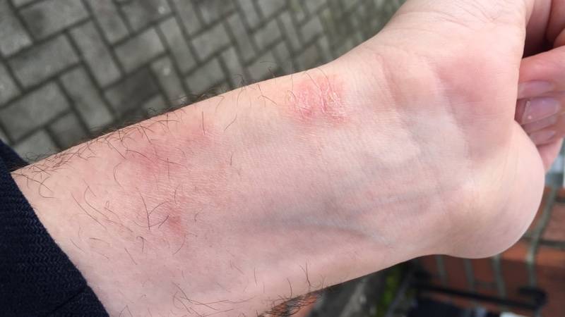 Fitbit skin irritation issue won't go away