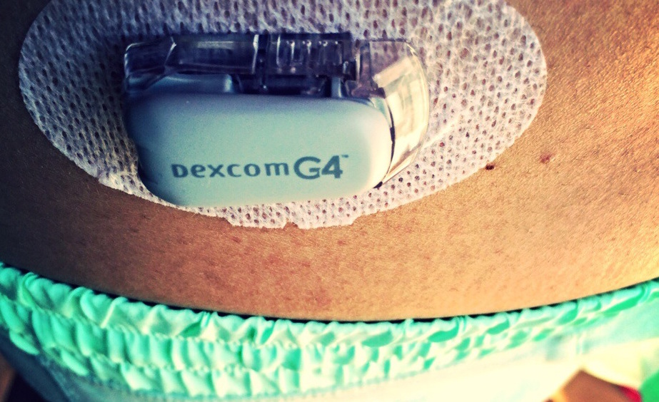 Google on board for diabetics' wearables