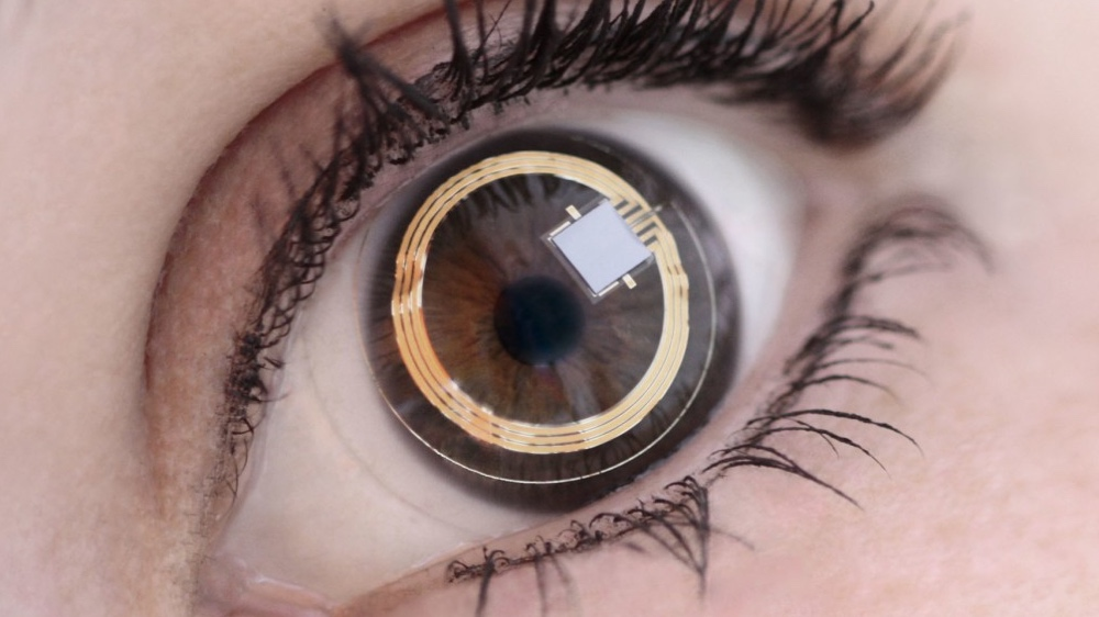 Triggerfish smart lens to fight glaucoma