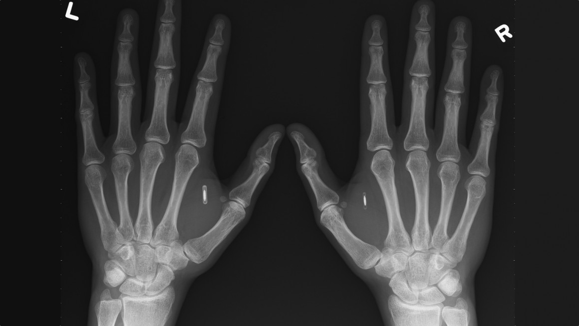 Biohacking with next-gen implants