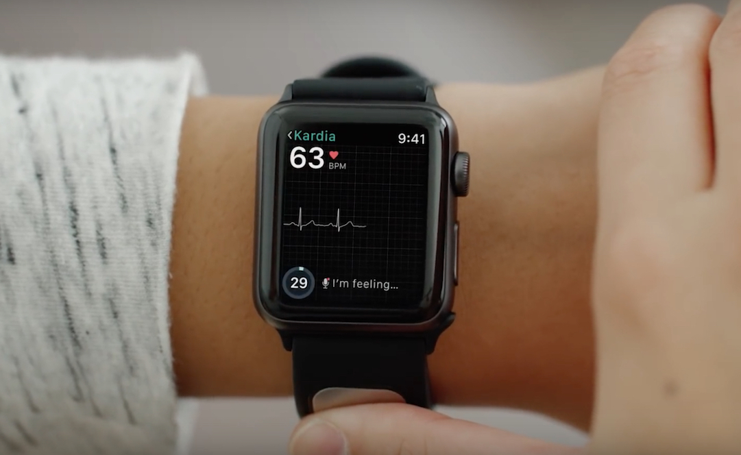 Apple working on a Watch with EKG monitor