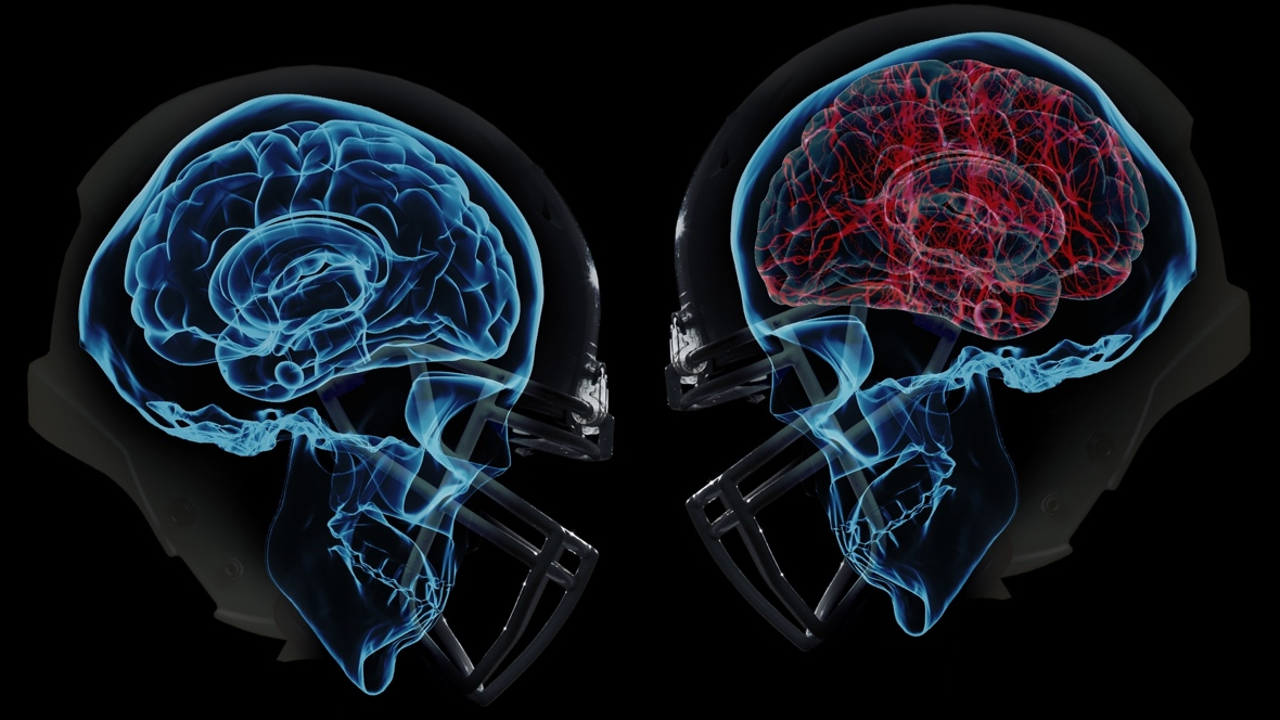Wearables and the concussion crisis
