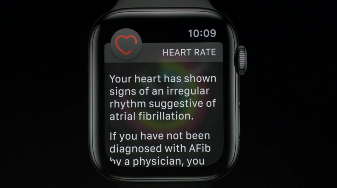Apple Heart Study results revealed
