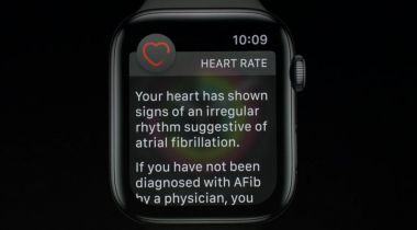 UK Apple Watch ECG could take 'years'