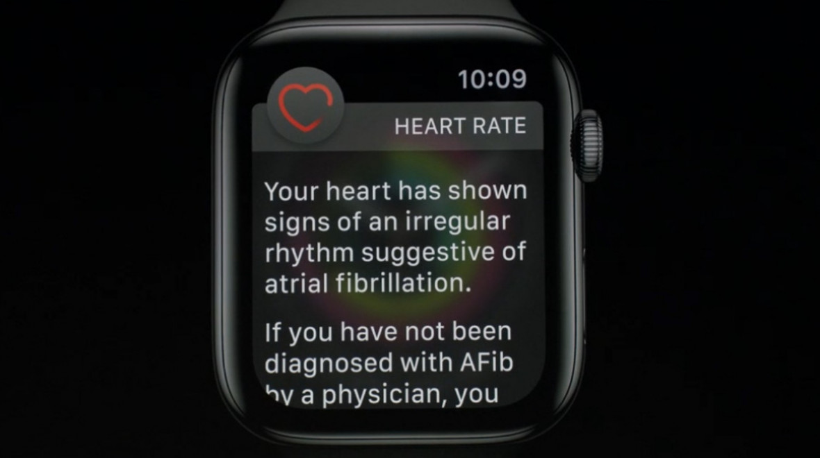 Apple Watch Series 4 ECG feature could take years to be