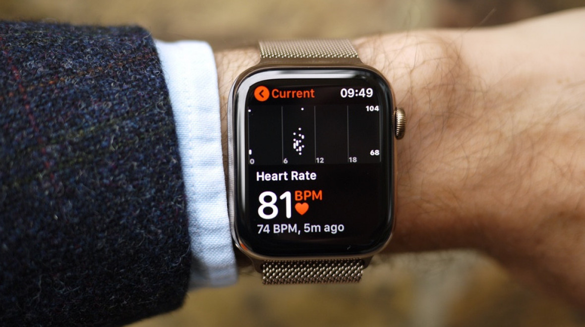 Apple Watch can now connect hip patients to doctors