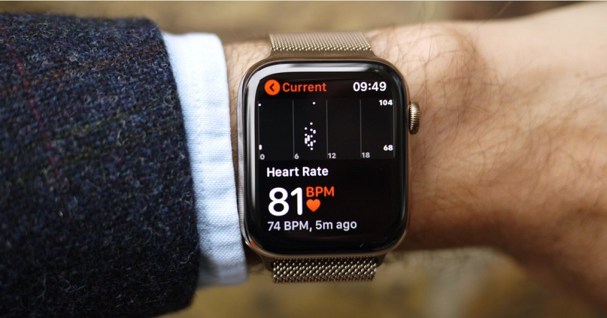 "Smartwatches part of ""heath tech revolution"" for the NHS"