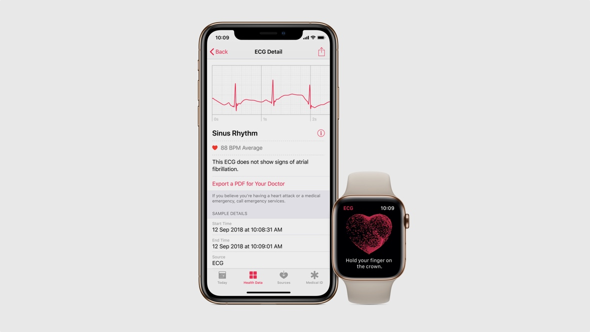 Apple's looking into dementia monitoring