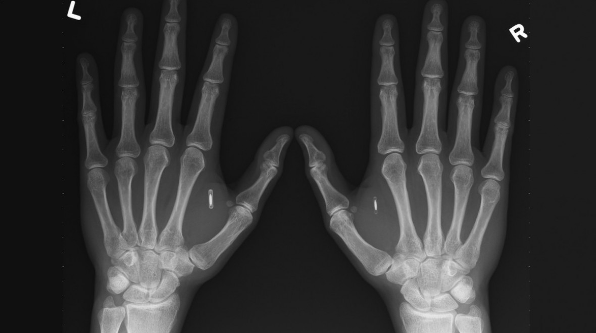 Presidential candidate gets RFID implant