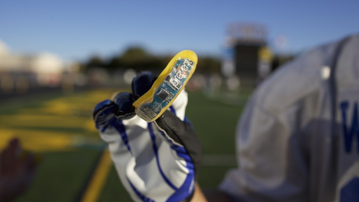 How wearables can detect sport's deadly invisible injuries
