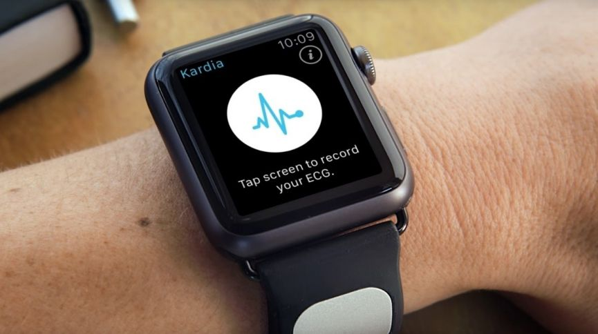 What you need to know about the Apple Watch as a diabetes device