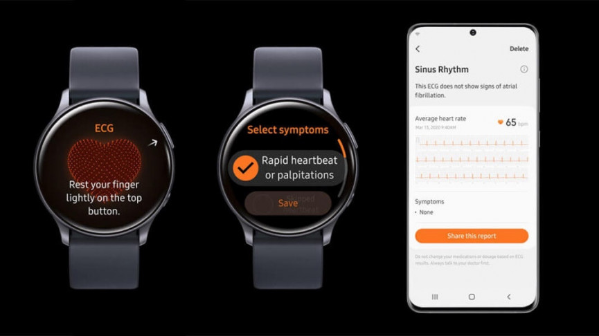 Samsung turns on ECG and blood pressure on more smartwatches