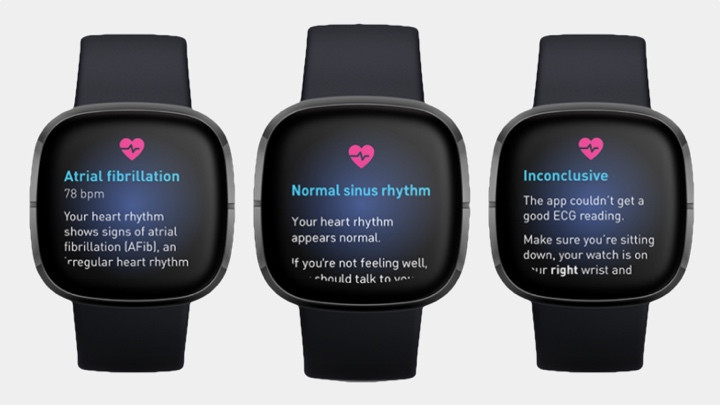 Why Fitbit ECG is your essential health tool for 2021